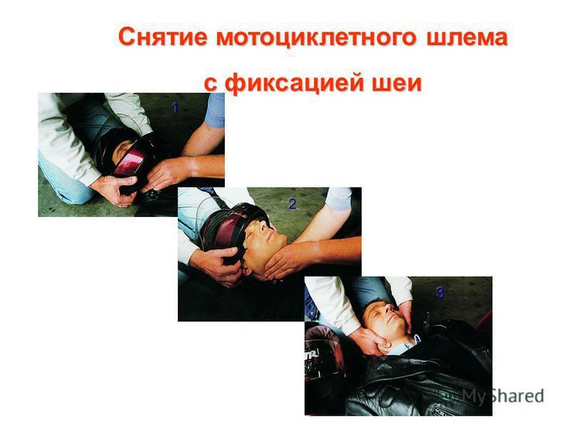 Снятие мотоциклетного шлема с фиксацией шеи