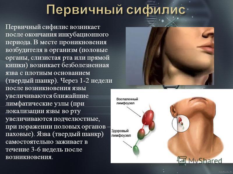 Первичный сифилис возникает после окончания инкубационного периода. В месте проникновения возбудителя в организм ( половые органы, слизистая рта или прямой кишки ) возникает безболезненная язва с плотным основанием ( твердый шанкр ). Через 1-2 недели