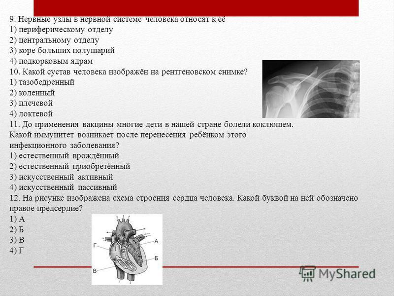 9. Нервные узлы в нервной системе человека относят к её 1) периферическому отделу 2) центральному отделу 3) коре больших полушарий 4) подкорковым ядрам 10. Какой сустав человека изображён на рентгеновском снимке? 1) тазобедренный 2) коленный 3) плече