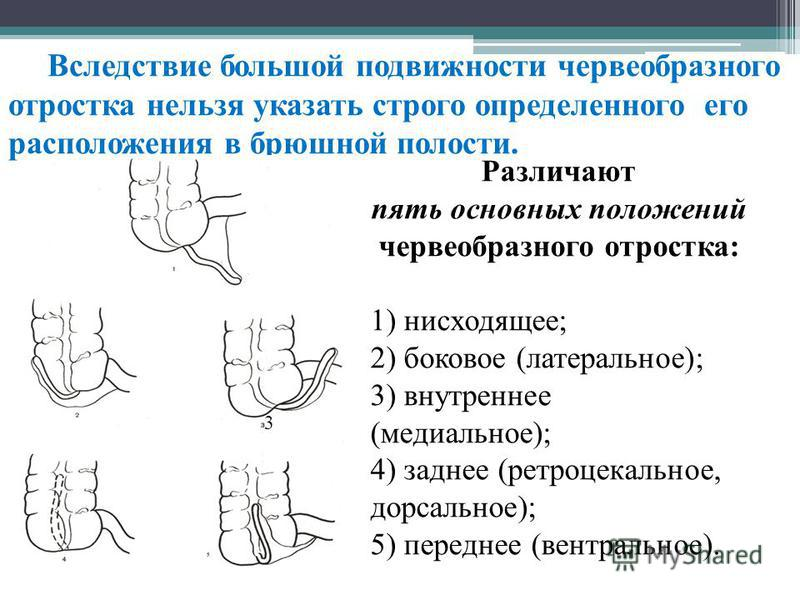 Вследствие большой подвижности червеобразного отростка нельзя указать строго определенного его расположения в брюшной полости. Различают пять основных положений червеобразного отростка: 1) нисходящее; 2) боковое (латеральное); 3) внутреннее (медиальн