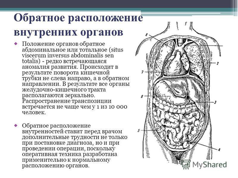 Обратное расположение внутренних органов Положение органов обратное абдоминальное или тотальное (situs viscerum inversus abdominalis sen totalis) - редко встречающаяся аномалия развития. Происходит в результате поворота кишечной трубки не слева напра