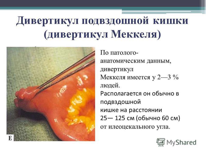 Дивертикул подвздошной кишки (дивертикул Меккеля) По патолого- анатомическим данным, дивертикул Меккеля имеется у 23 % людей. Располагается он обычно в подвздошной кишке на расстоянии 25 125 см (обычно 60 см) от илеоцекального угла.