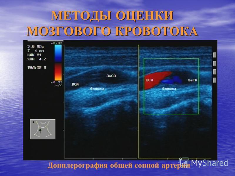 МЕТОДЫ ОЦЕНКИ МОЗГОВОГО КРОВОТОКА Допплерография общей сонной артерии