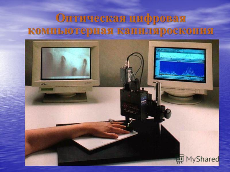 Оптическая цифровая компьютерная капилляроскопия