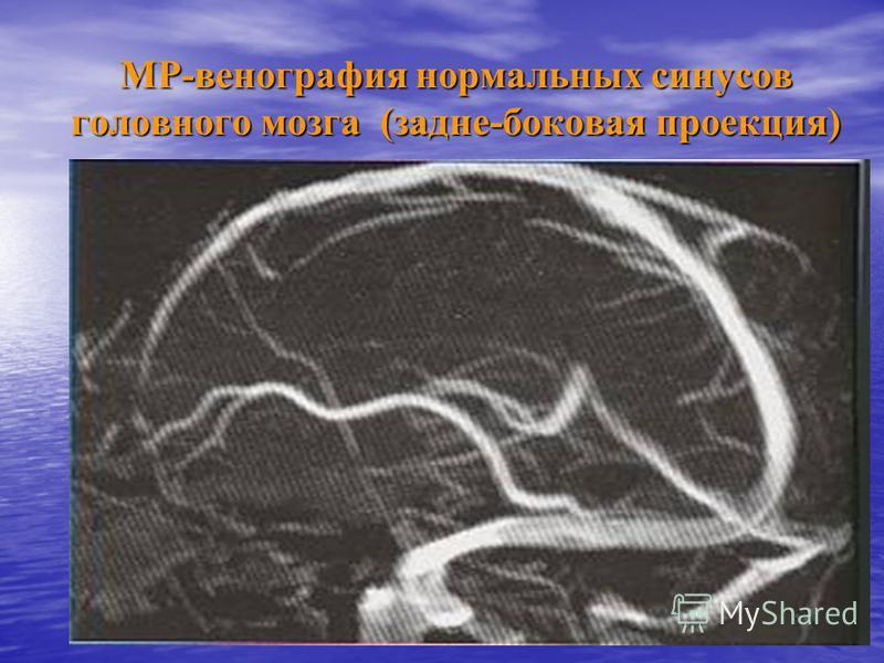 МР-венография нормальных синусов головного мозга (задне-боковая проекция)