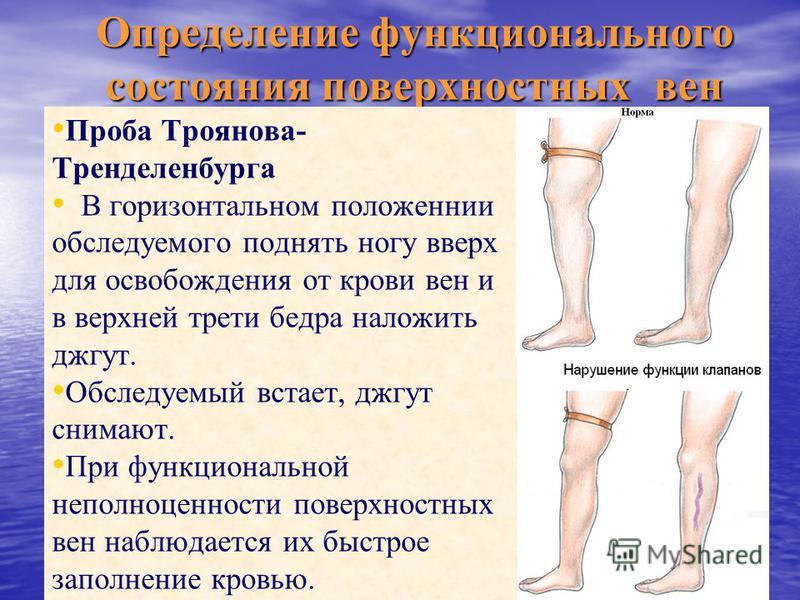 Определение функционального состояния поверхностных вен Проба Троянова- Тренделенбурга В горизонтальном положеннии обследуемого поднять ногу вверх для освобождения от крови вен и в верхней трети бедра наложить джгут. Обследуемый встает, джгут снимают