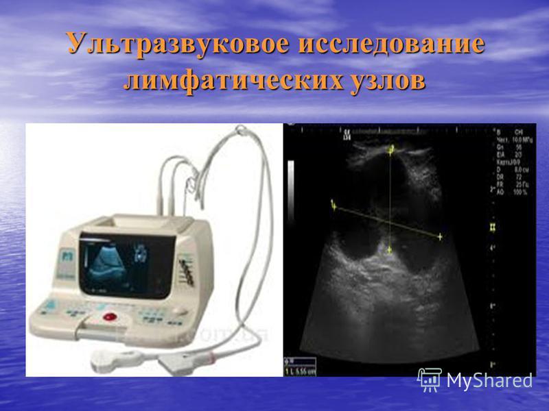 Ультразвуковое исследование лимфатических узлов
