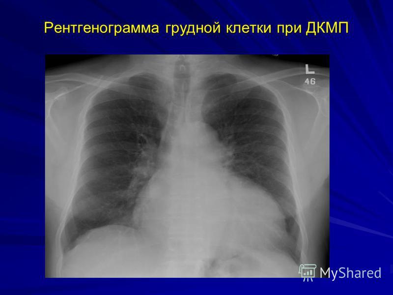 Рентгенограмма грудной клетки при ДКМП