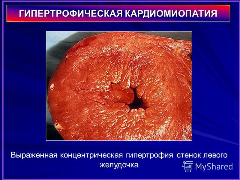 Выраженная концентрическая гипертрофия стенок левого желудочка ГИПЕРТРОФИЧЕСКАЯ КАРДИОМИОПАТИЯ