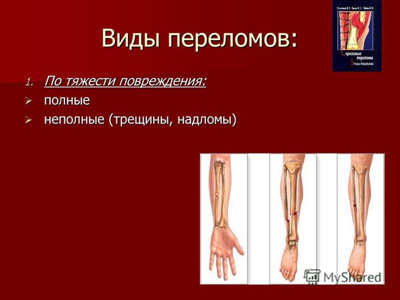 Виды переломов: 1. По тяжести повреждения: полные полные неполные (трещины, надломы) неполные (трещины, надломы)