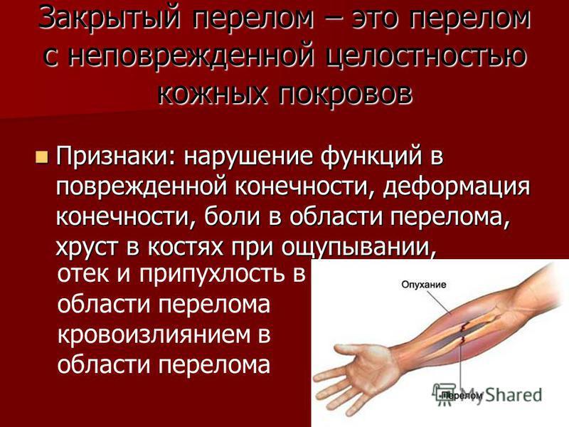 Закрытый перелом – это перелом с неповрежденной целостностью кожных покровов Признаки: нарушение функций в поврежденной конечности, деформация конечности, боли в области перелома, хруст в костях при ощупывании, Признаки: нарушение функций в поврежден