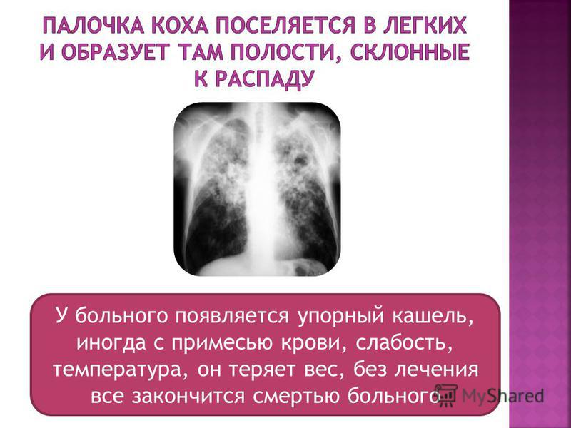 У больного появляется упорный кашель, иногда с примесью крови, слабость, температура, он теряет вес, без лечения все закончится смертью больного
