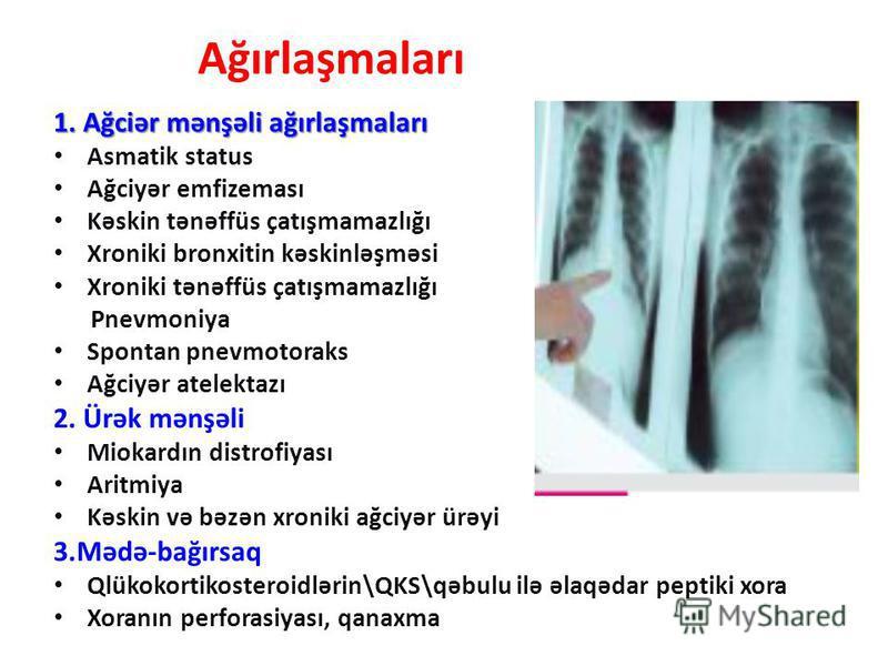 Ağırlaşmaları 1. Ağciər mənşəli ağırlaşmaları Asmatik status Ağciyər emfizeması Kəskin tənəffüs çatışmamazlığı Xroniki bronxitin kəskinləşməsi Xroniki tənəffüs çatışmamazlığı Pnevmoniya Spontan pnevmotoraks Ağciyər atelektazı 2. Ürək mənşəli Miokardı