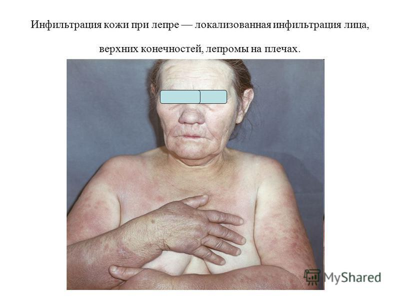 Инфильтрация кожи при лепре локализованная инфильтрация лица, верхних конечностей, лепромы на плечах.