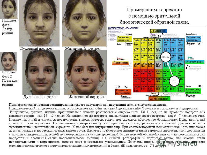 Духовный портрет Жизненный портрет Пример психодиагностики доминирования правого полушария при нарушении связи между полушариями. Психологический тип девочки компьютер определяет как «Интуитивный нестабильный». Это означает склонность к депрессии. Ин