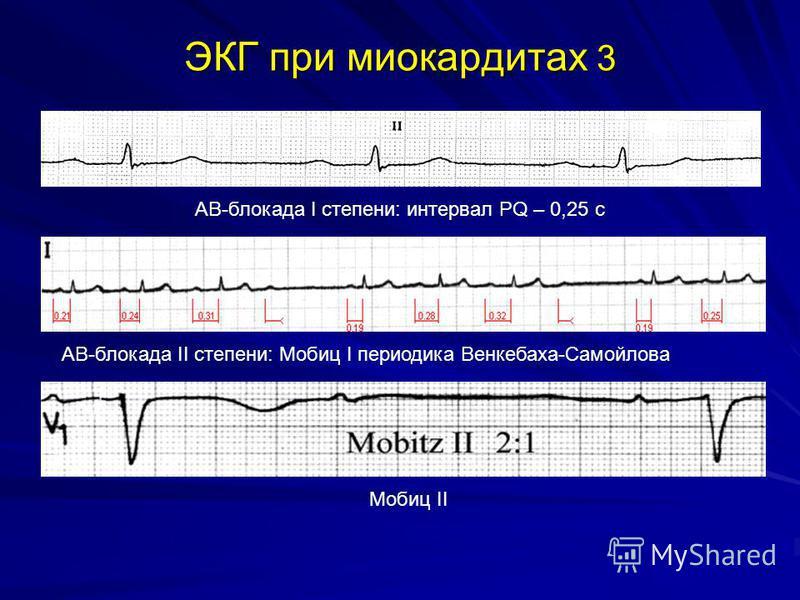 ЭКГ при миокардитах 3 АВ-блокада I степени: интервал PQ – 0,25 с АВ-блокада II степени: Мобиц I периодика Венкебаха-Самойлова Мобиц II