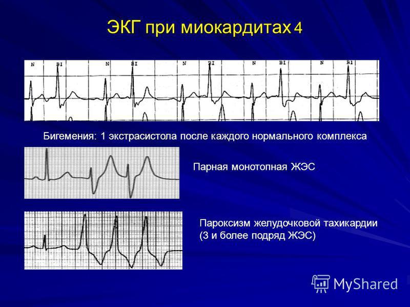 ЭКГ при миокардитах 4 Бигемения: 1 экстрасистола после каждого нормального комплекса Парная монотопная ЖЭС Пароксизм желудочковой тахикардии (3 и более подряд ЖЭС)