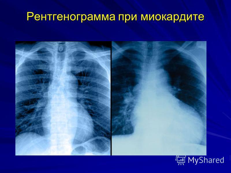 Рентгенограмма при миокардите