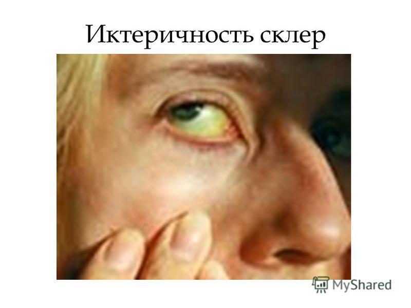 Иктеричность склер