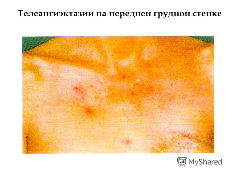 Телеангиэктазии на передней грудной стенке