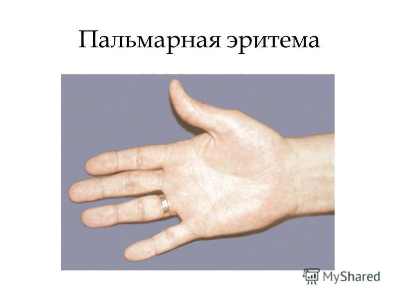 Тирозиноз