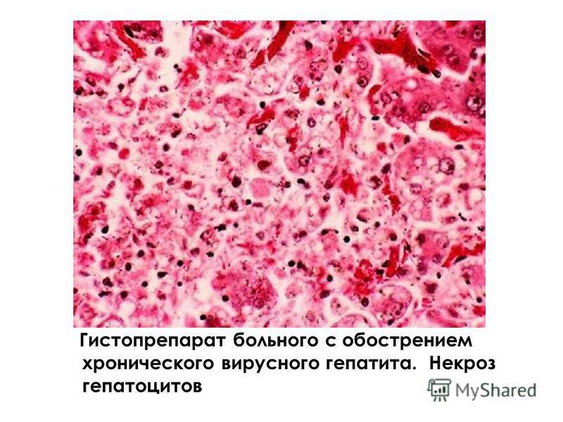 Гистопрепарат больного с обострением хронического вирусного гепатита. Некроз гепатоцитов