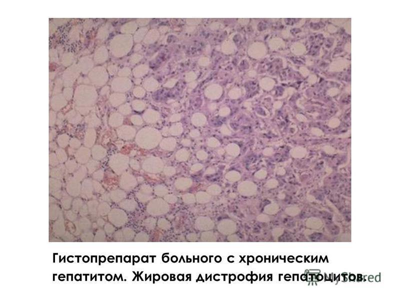 Гистопрепарат больного с хроническим гепатитом. Жировая дистрофия гепатоцитов.