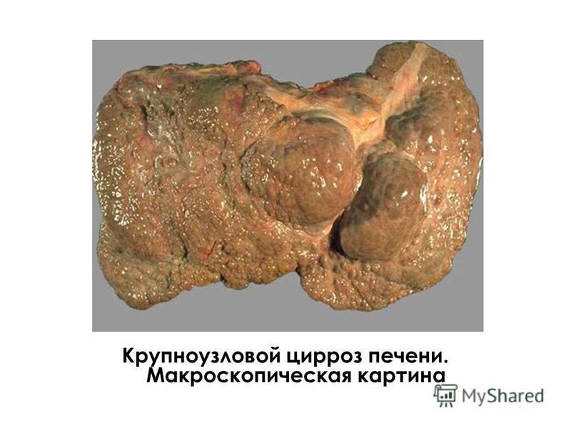 Крупноузловой цирроз печени. Макроскопическая картина