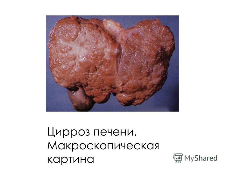Цирроз печени. Макроскопическая картина