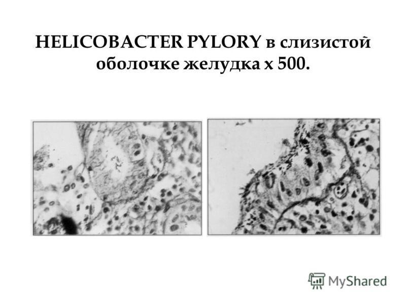 HELICOBACTER PYLORY в слизистой оболочке желудка х 500.