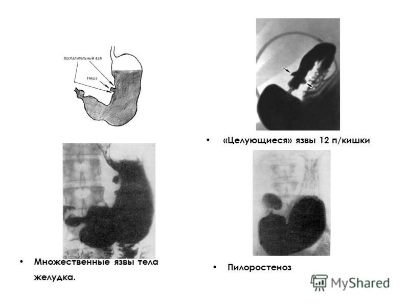 «Целующиеся» язвы 12 п/кишки Множественные язвы тела желудка. Пилоростеноз
