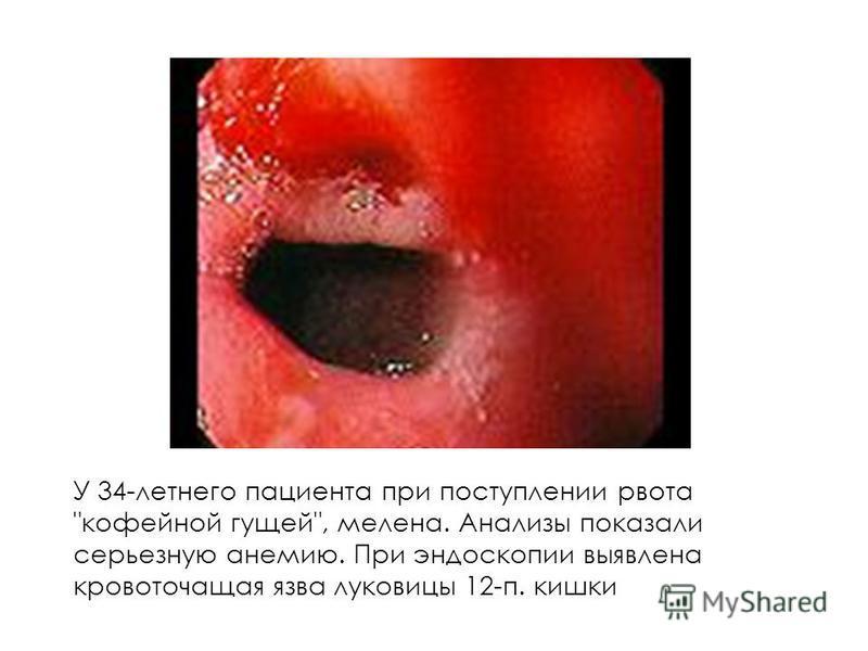 У 34-летнего пациента при поступлении рвота кофейной гущей, мелена. Анализы показали серьезную анемию. При эндоскопии выявлена кровоточащая язва луковицы 12-п. кишки