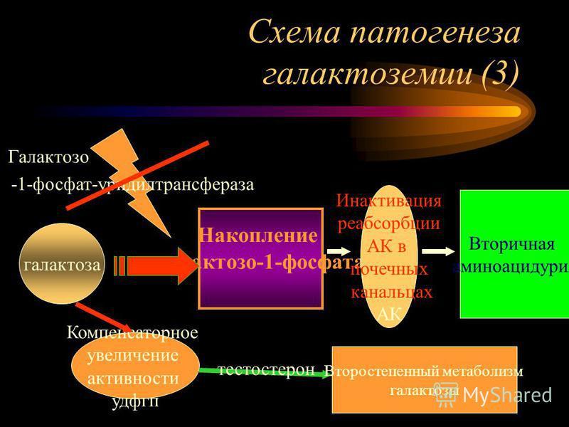 Схема патогенеза галактоземии (3) галактоза Накопление галактозо-1-фосфата -1-фосфат-уридилтрансфераза Галактозо Компенсаторное увеличение активности удфгп Второстепенный метаболизм галактозы Инактивация реабсорбции АК в почечных канальцах АК Вторичн