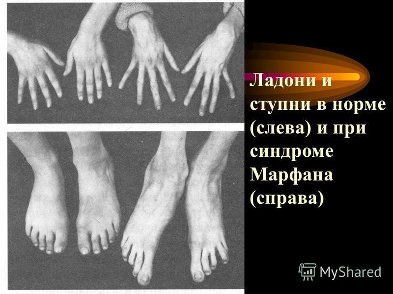 Ладони и ступни в норме (слева) и при синдроме Марфана (справа)