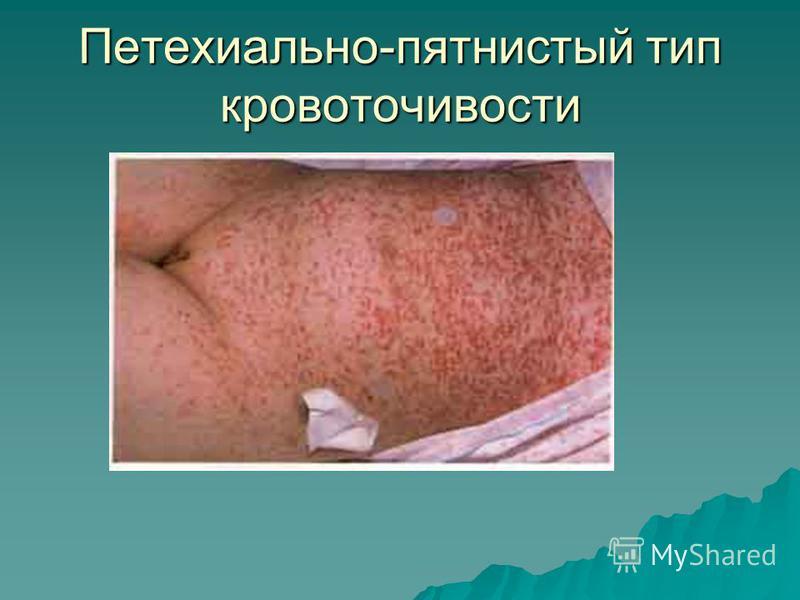 Петехиально-пятнистый тип кровоточивости