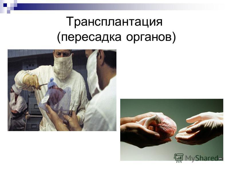 Трансплантация (пересадка органов)