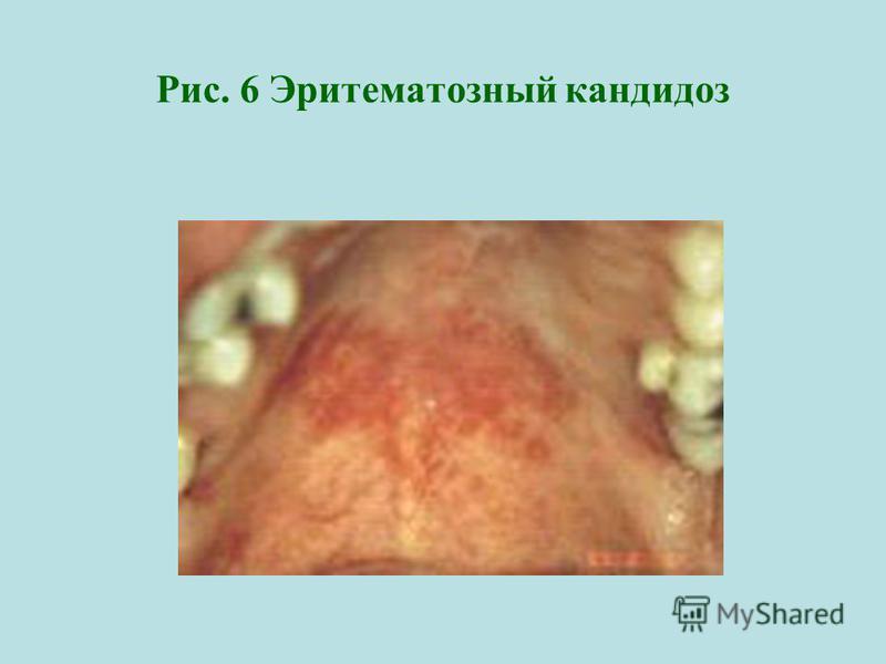 Рис. 6 Эритематозный кандидоз