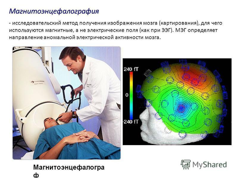 Магнитоэнцефалогра ф Магнитоэнцефалография - исследовательский метод получения изображения мозга (картирования), для чего используются магнитные, а не электрические поля (как при ЭЭГ). МЭГ определяет направление аномальной электрической активности мо