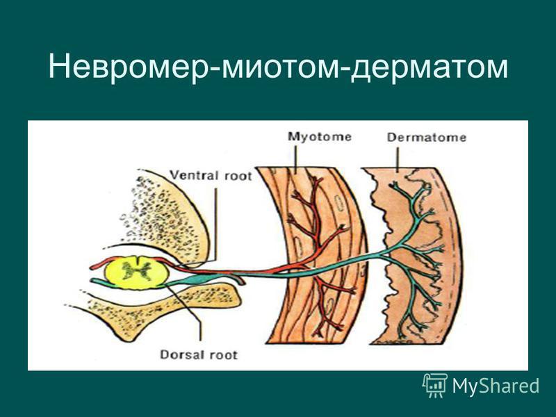 Невромер-миотом-дерматом