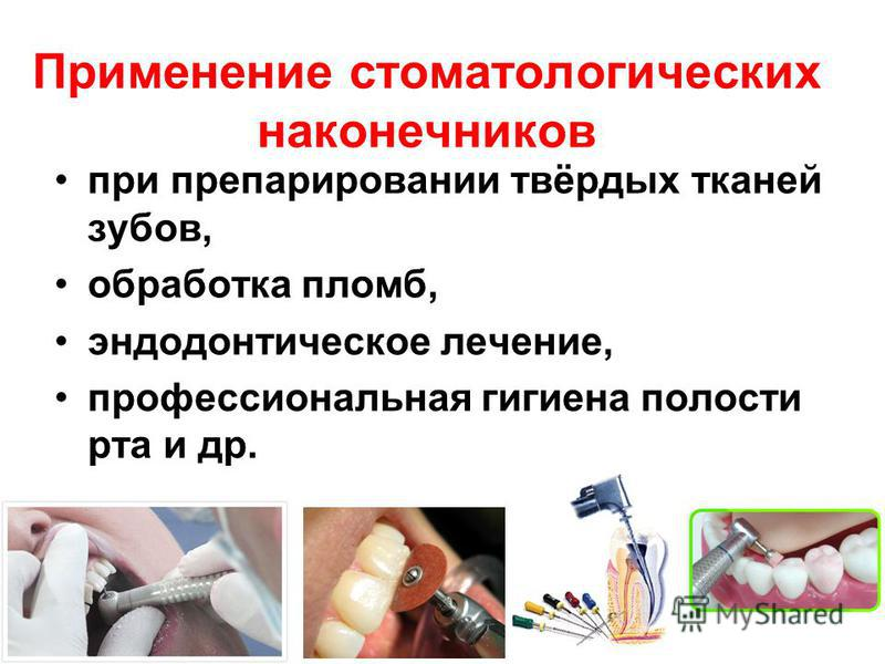 Применение стоматологических наконечников при препарировании твёрдых тканей зубов, обработка пломб, эндодонтическое лечение, профессиональная гигиена полости рта и др.