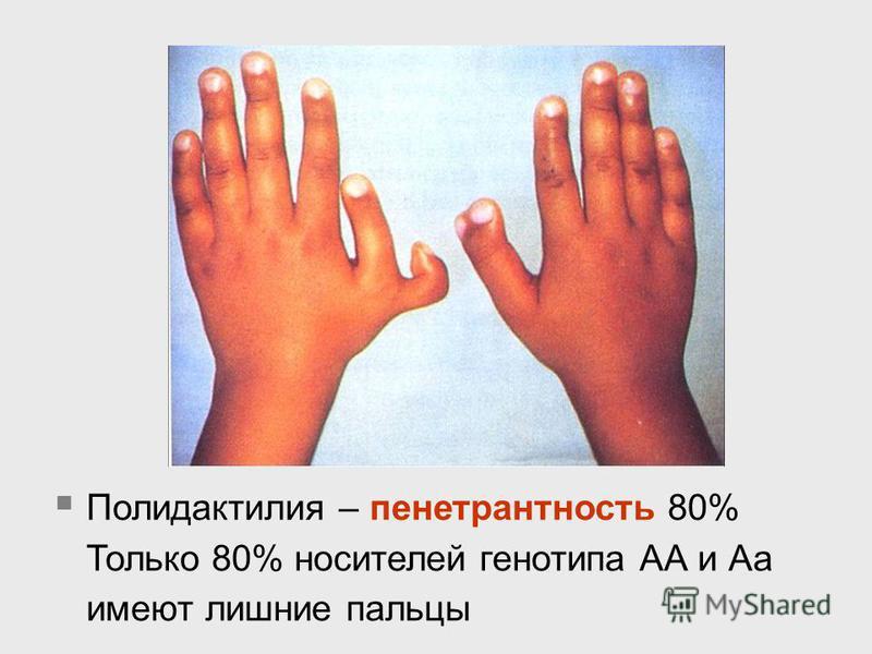 Полидактилия – пенетрантность 80% Только 80% носителей генотипа АА и Аа имеют лишние пальцы