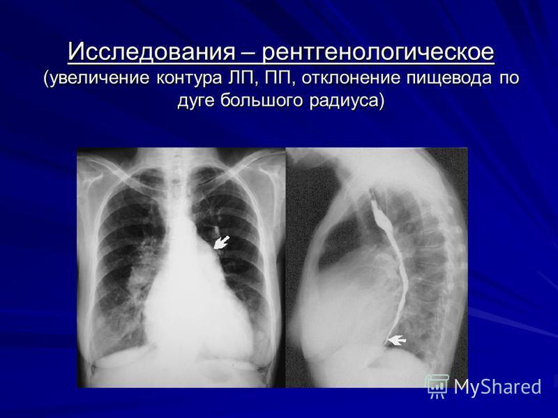Исследования – рентгенологическое (увеличение контура ЛП, ПП, отклонение пищевода по дуге большого радиуса)