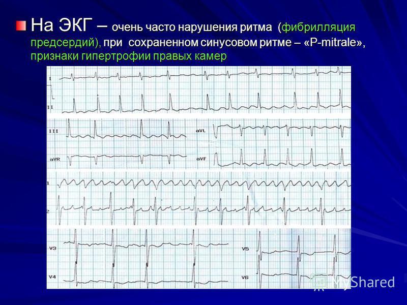 На ЭКГ – очень часто нарушения ритма (фибрилляция предсердий), при сохраненном синусовом ритме – «P-mitrale», признаки гипертрофии правых камер