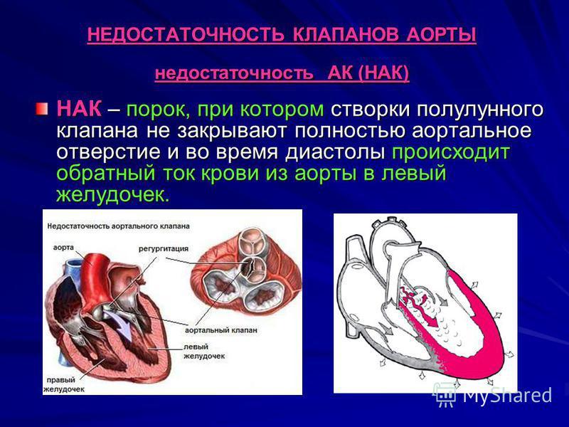 НЕДОСТАТОЧНОСТЬ КЛАПАНОВ АОРТЫ недостаточность АК (НАК) НАК – порок, при котором створки полулунного клапана не закрывают полностью аортальное отверстие и во время диастолы происходит обратный ток крови из аорты в левый желудочек.