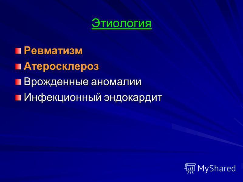 Этиология Ревматизм Атеросклероз Врожденные аномалии Инфекционный эндокардит