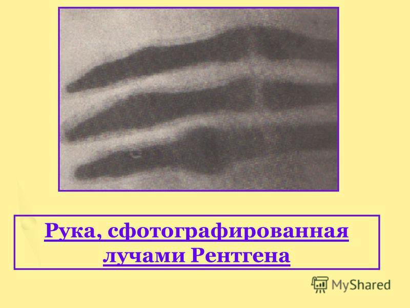 Рука, сфотографированная лучами Рентгена
