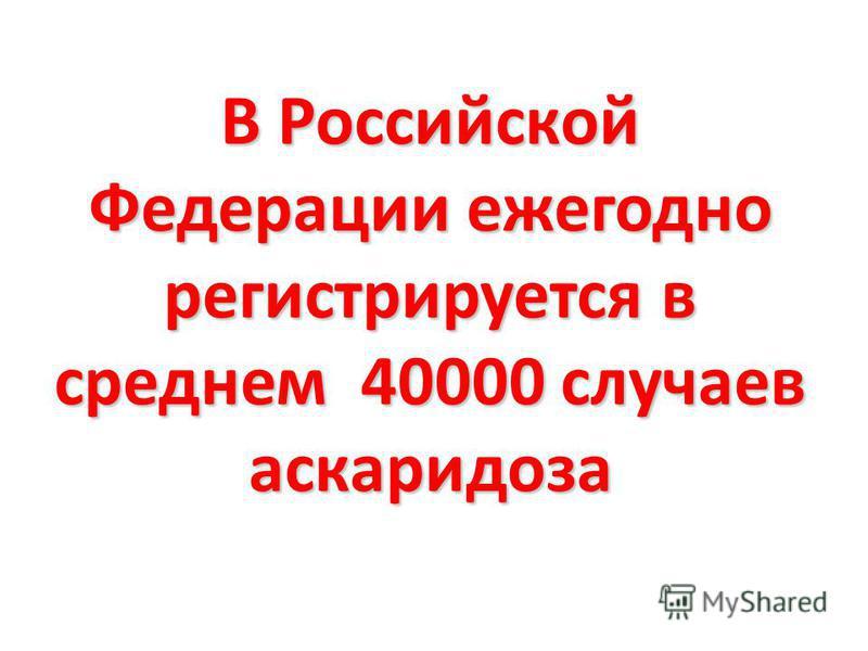 В Российской Федерации ежегодно регистрируется в среднем 40000 случаев аскаридоза