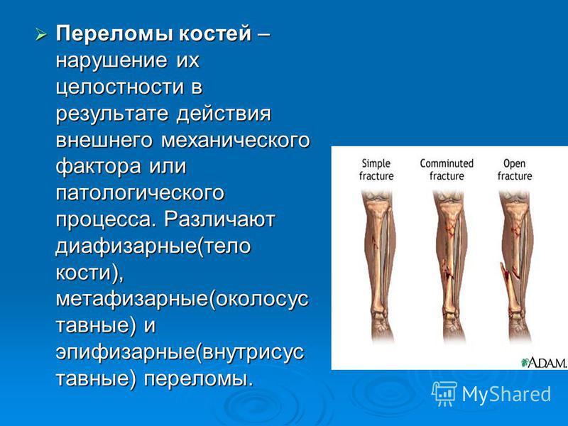 Переломы костей – нарушение их целостности в результате действия внешнего механического фактора или патологического процесса. Различают диафизарные(тело кости), метафизарные(около суставные) и эпифизарные(внутрисуставные) переломы. Переломы костей –