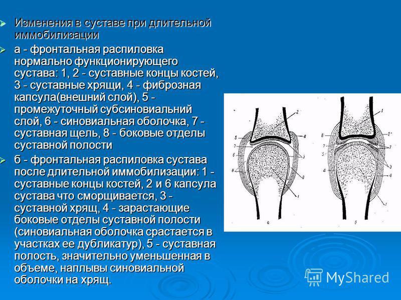 Изменения в суставе при длительной иммобилизации Изменения в суставе при длительной иммобилизации а - фронтальная распиловка нормально функционирующего сустава: 1, 2 - суставные концы костей, 3 - суставные хрящи, 4 - фиброзная капсула(внешний слой),