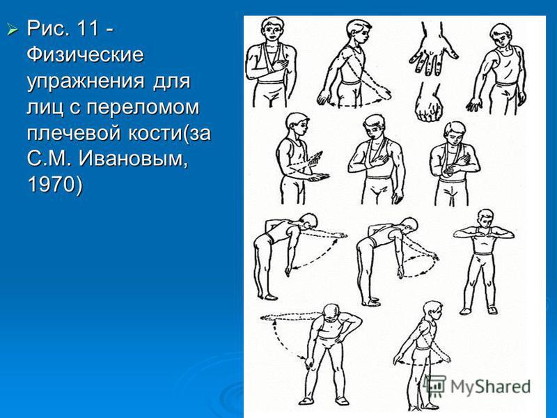 Рис. 11 - Физические упражнения для лиц с переломом плечевой кости(за С.М. Ивановым, 1970)